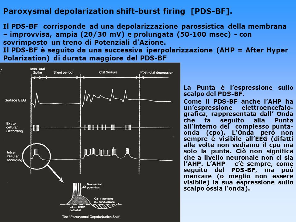 Paroxysmal depolarization shift-burst firing [PDS-BF]